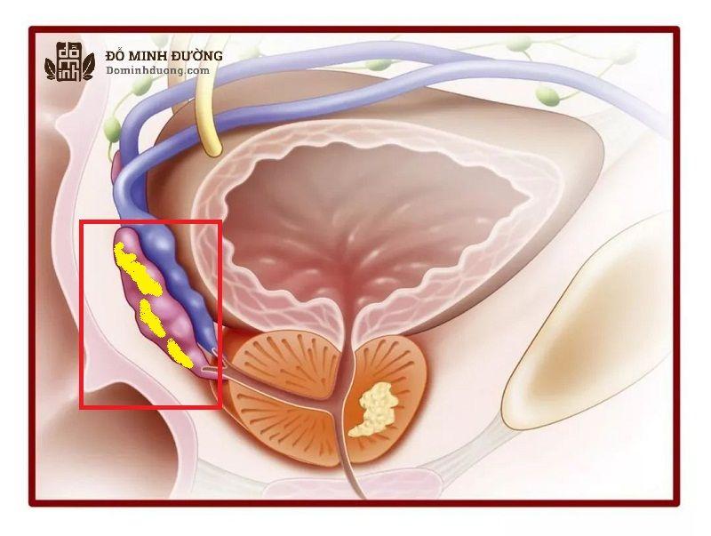 Bệnh viêm túi tinh là tình trạng túi tinh bị nhiễm trùng