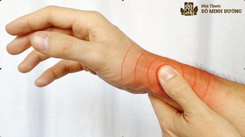 Hội chứng De Quervain cũng là nguyên nhân gây viêm đau khớp ngón tay cái