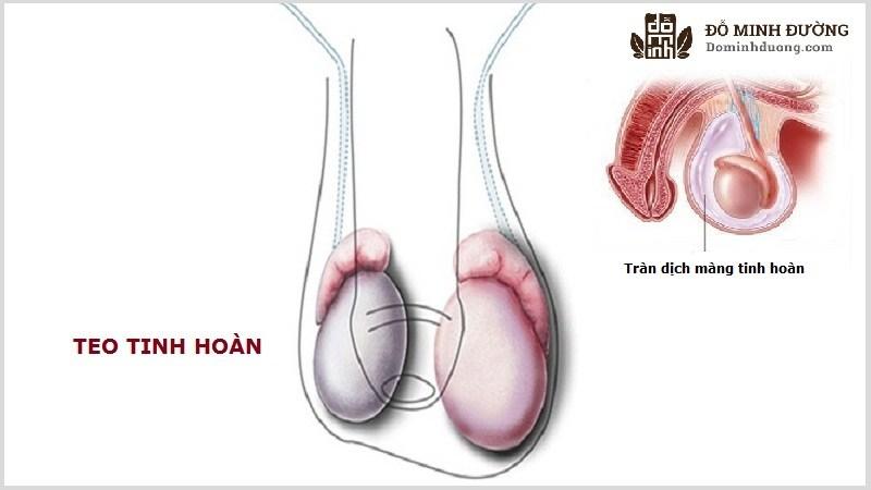 Teo tinh hoàn là biến chứng dễ gặp của tràn dịch màng tinh hoàn