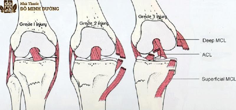 Tổn thương dây chằng và gân khớp gối gây viêm đau
