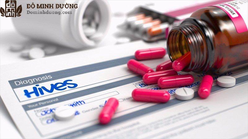 Thuốc Tây y giúp đẩy lùi triệu chứng bệnh nhanh chóng nhưng dễ gây tác dụng phụ