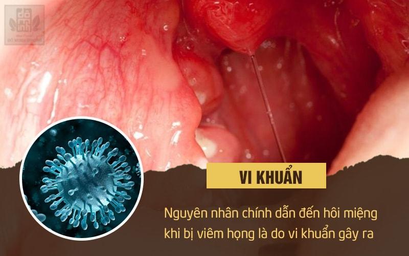 Các vi khuẩn trong thành họng gây viêm họng hạt là một trong những nguyên nhân hôi miệng