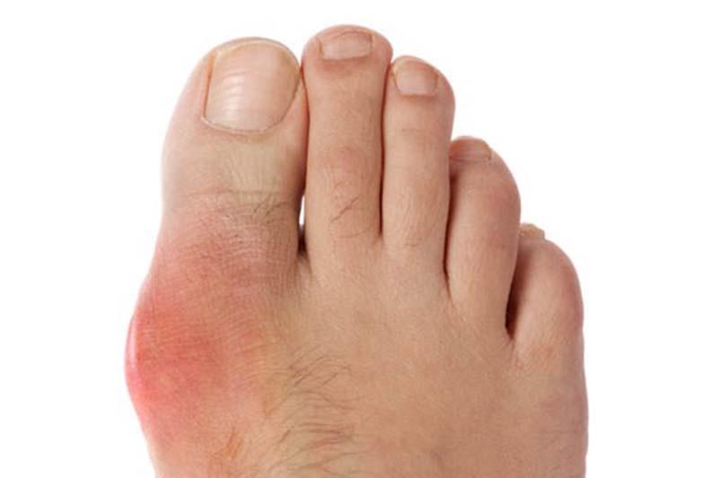 Uống bia rượu vào cảm thấy nhức xương khớp kéo dài có thể là dấu hiệu của bệnh gout