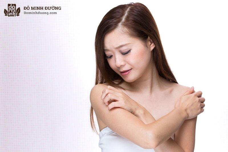 Nổi mề đay có được tắm không là băn khoăn của rất nhiều bệnh nhân