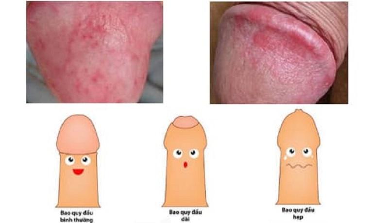 Hình ảnh viêm bao quy đầu ở nam giới