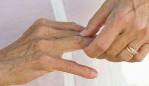 Bệnh viêm đau khớp ngón tay