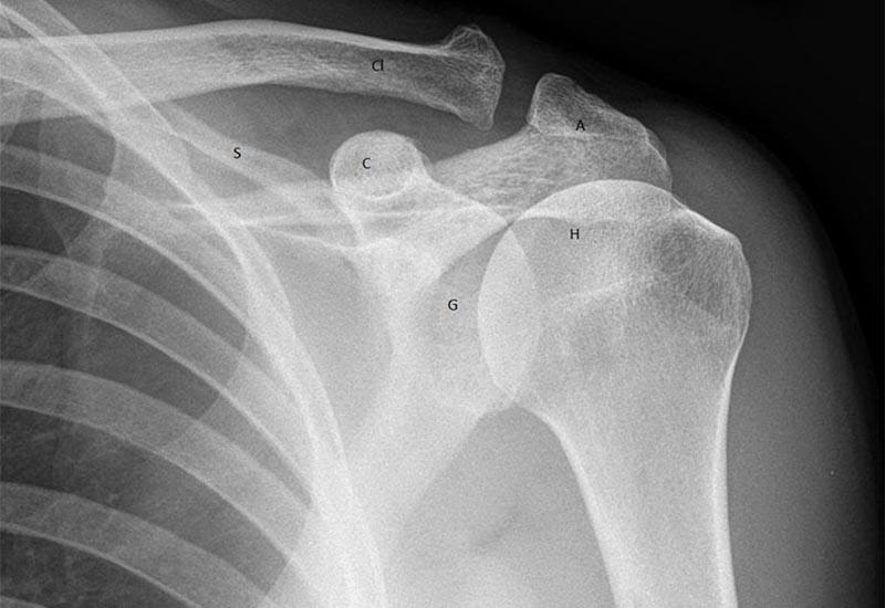 Hình ảnh X-quang vùng khớp vai