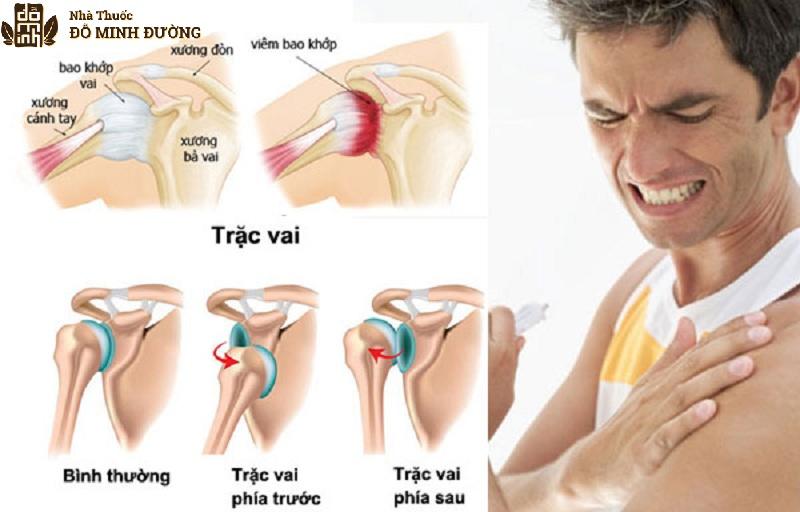 Đau khớp vai có thể xuất hiện ở nhiều lứa tuổi