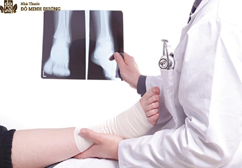 Chấn thương là nguyên nhân dẫn tới cổ chân bị viêm đau