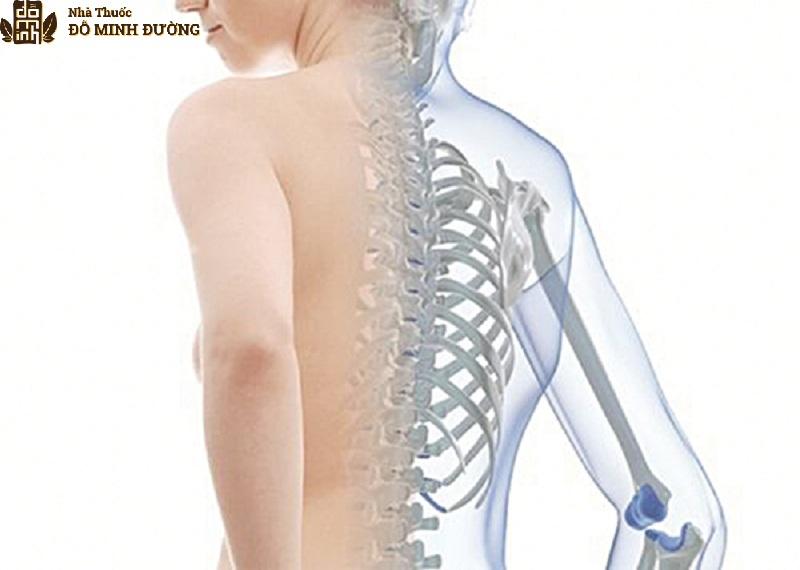 Bệnh loãng xương gây thoái hóa khớp
