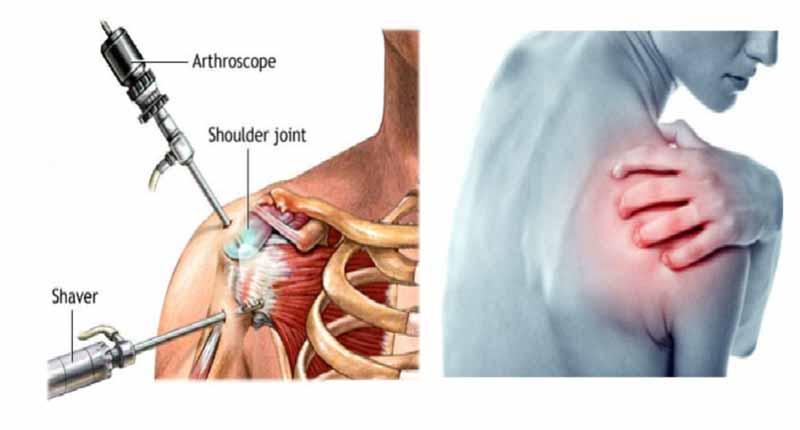 Phẫu thuật khớp vai chỉ định cho những trường tổn thương khớp nặng