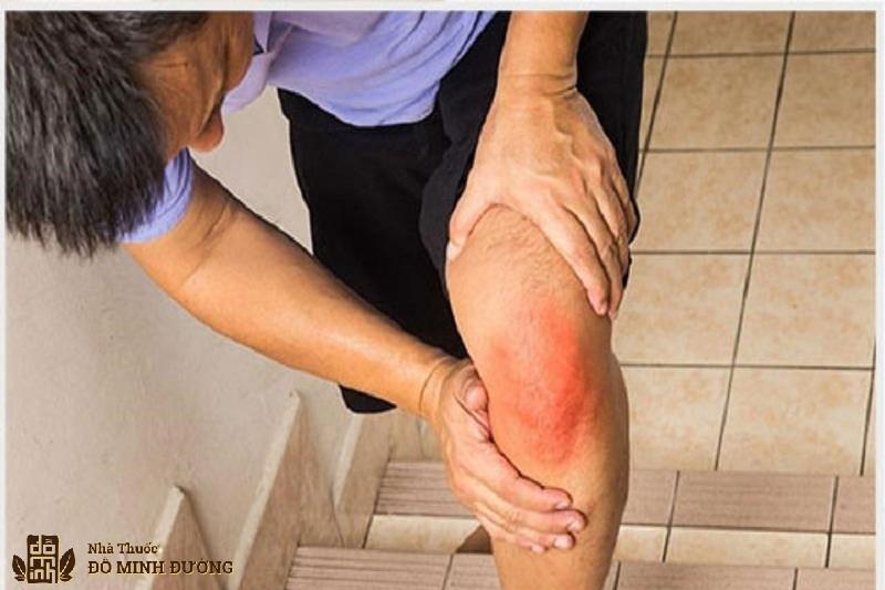 Thoái hóa khớp gối gây ra hiện tượng sưng đỏ, đau nhức