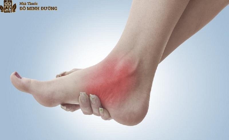 Viêm khớp cổ chân thường gây ra những cơn đau nhức khó chịu