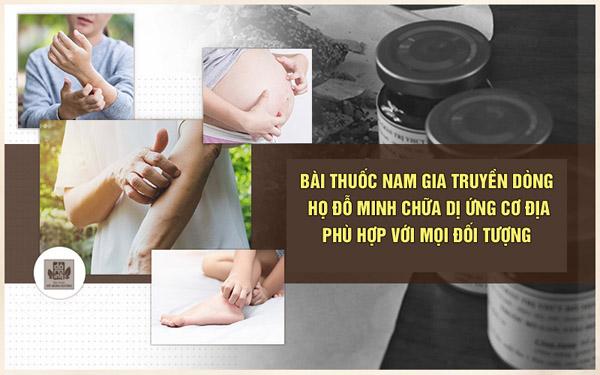 Bài thuốc chữa dị ứng cơ địa của nhà thuốc Đỗ Minh mang lại hiệu quả tốt