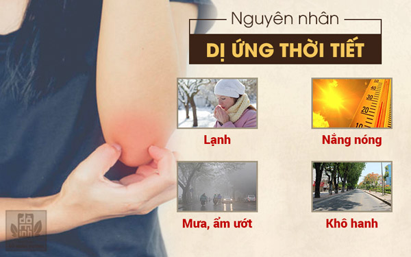 Thời tiết là nguyên nhân chính dẫn đến tình trạng bệnh