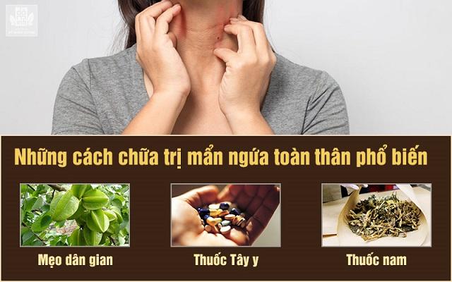 Những cách chữa trị mẩn ngứa toàn thân phổ biến