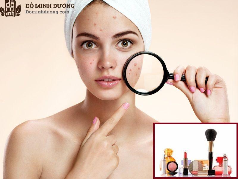 Mỹ phẩm, hóa chất là nguyên nhân gây dị ứng da mặt hàng đầu