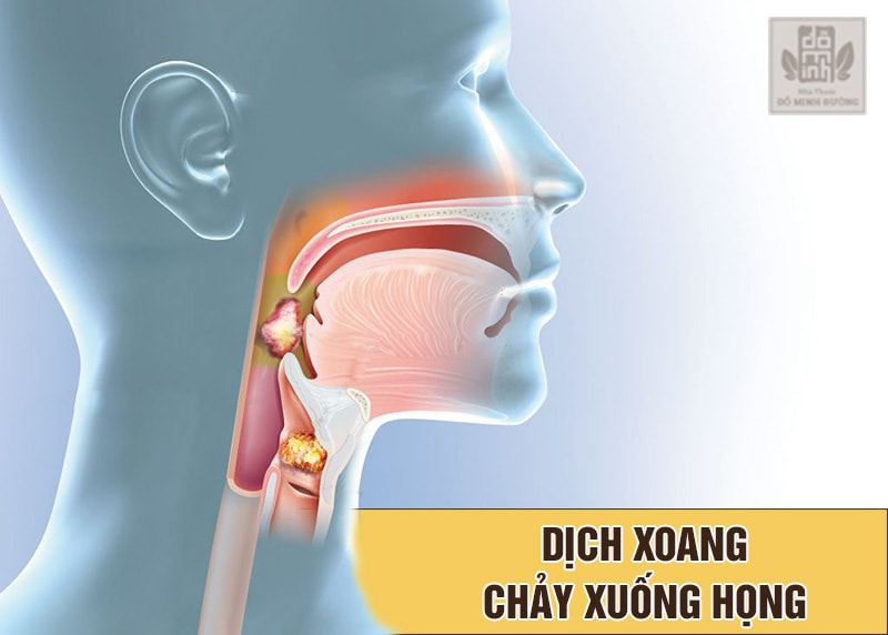 Hiện tượng dịch mũi chảy xuống họng cảnh báo bệnh xoang