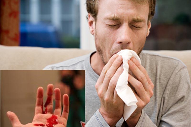 Viêm xoang khạc ra máu là tình trạng khi bệnh đã chuyển sang giai đoạn mãn tính