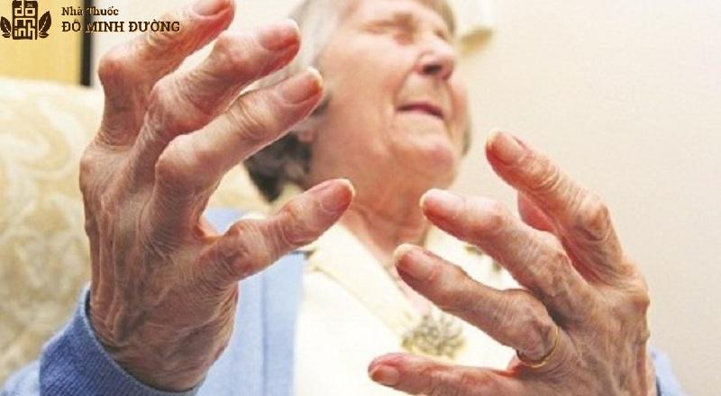 Người già xương khớp yếu dễ mắc bệnh phong tê thấp