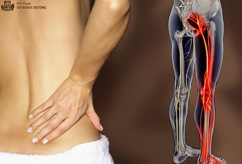 Cách chữa đau dây thần kinh tọa