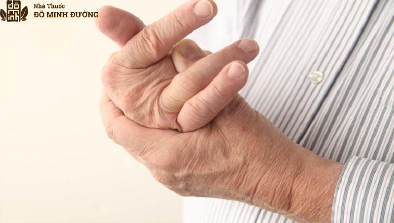 Khớp ngón tay là một trong những vị trí dễ bị phong tê thấp