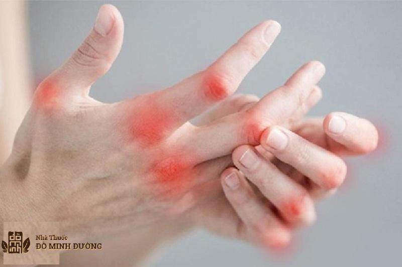 Phong tê thấp gây ra triệu chứng đau nhức khó chịu