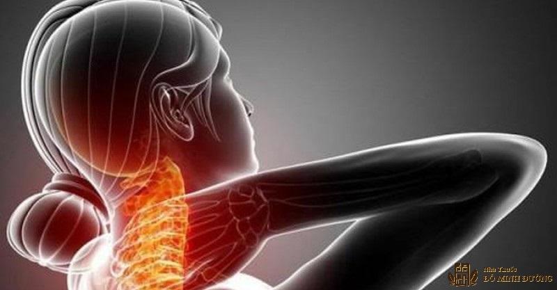 Cách chữa đau vai gáy hiệu quả