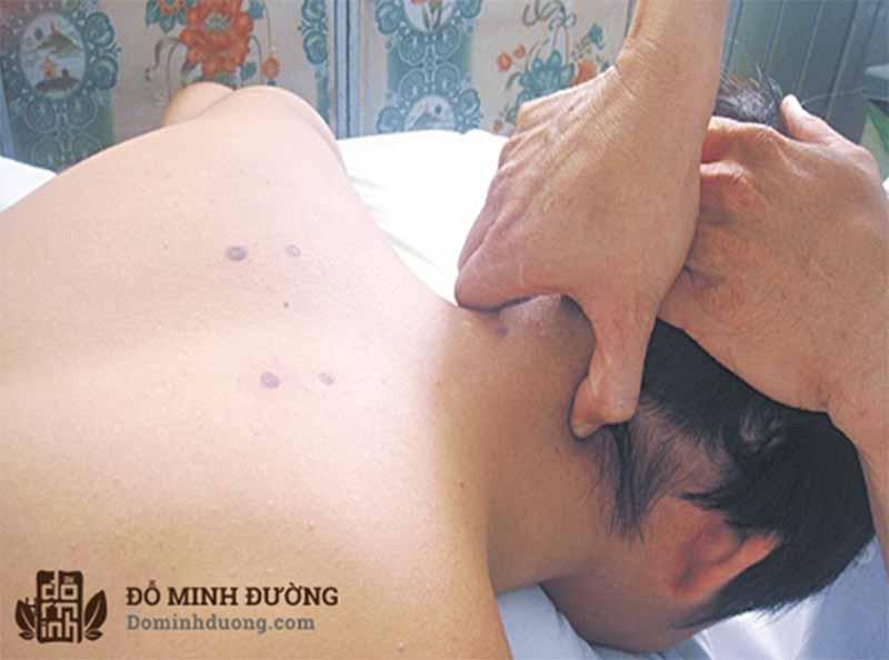 Ấn huyệt chữa đau vai gáy