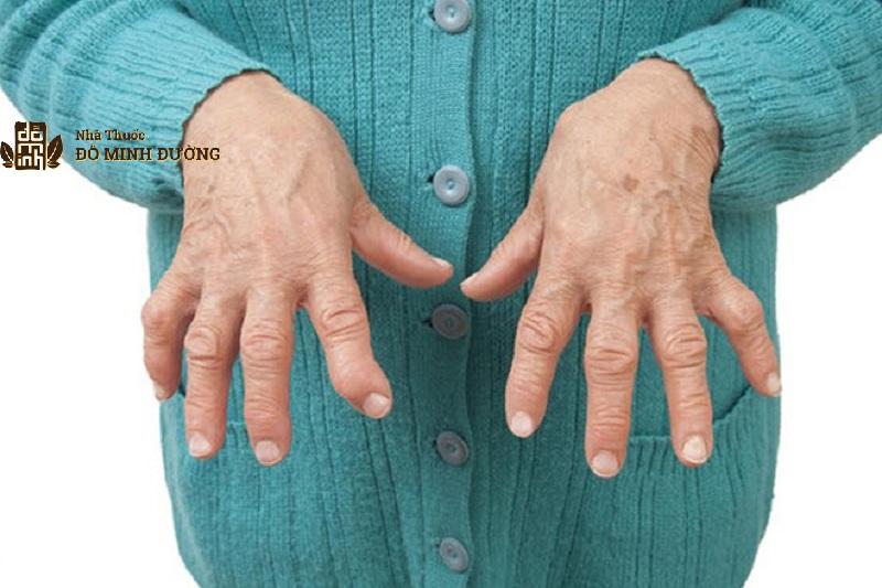 Người ngoài 30 tuổi là đối tượng dễ măc bệnh viêm khớp dạng thấp