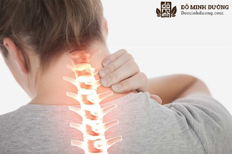 Trước khi điều trị thoái hóa cột sống cổ bằng Đông y cần xác định nguyên nhân và thể bệnh