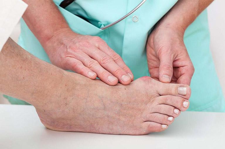 Tía tô hỗ trợ rất tốt cho những người bị thoái hóa khớp, gout hay viêm đau khớp gối