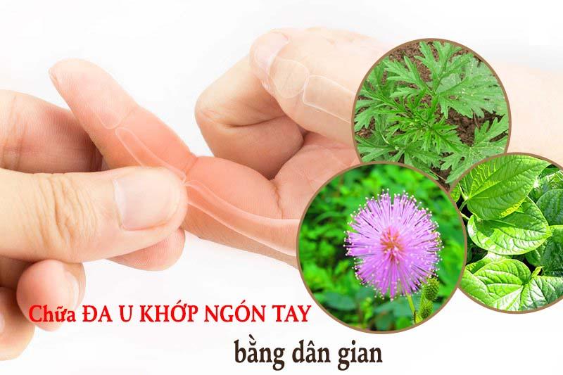 Chữa đau khớp ngón tay bằng dân gian an toàn, hiệu quả