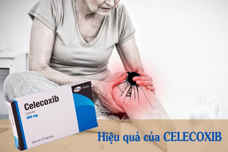 Celecoxib có hiệu quả nhanh nhưng có nhiều tác dụng phụ