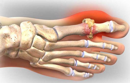 Chữa bệnh gout ở đâu tại Hà Nội