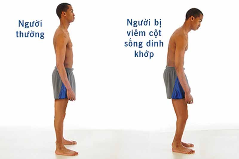 Đau lưng trên có thể là biểu hiện của bệnh viêm khớp cột sống