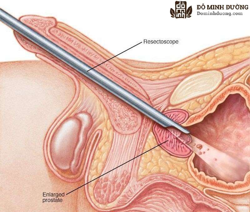 Phẫu thuật nội soi là cách chữa hiệu quả đối với nhiều bệnh nhân viêm tiền liệt tuyến