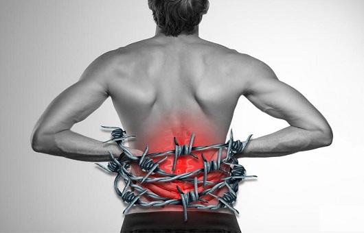 Bệnh gai cột sống lưng là gì
