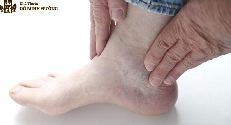 Bệnh nhân thoái hóa khớp cổ chân thường thấy bị cứng khớp rất khó để di chuyển