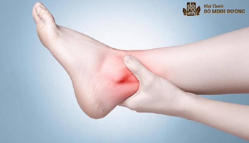 Bệnh thoái hóa khớp cổ chân là bệnh xương khớp thường gặp ở nhiều đối tượng