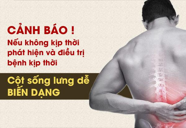 Chủ quan với bệnh thoái hóa cột sống lưng dễ gây hậu quả đáng tiếc