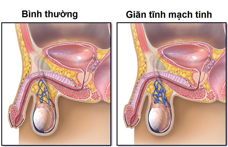 Giãn mạch thừng tinh là bệnh phổ biến ở thanh thiếu niên và dễ gây vô sinh