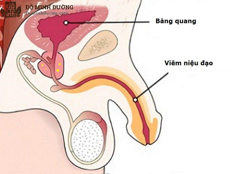 Bộ phận sinh dục bị viêm nhiễm là nguyên nhân gây ra viêm tinh hoàn ở nam giới