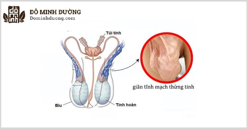 Giãn tĩnh mạch tinh hoàn độ 3 có biểu hiện là bìu chảy xệ, các tĩnh mạch giãn nổi lên