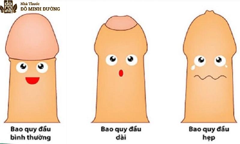 Hẹp bao quy đầu dễ gây viêm nhiễm và giảm khoái cảm tình dục