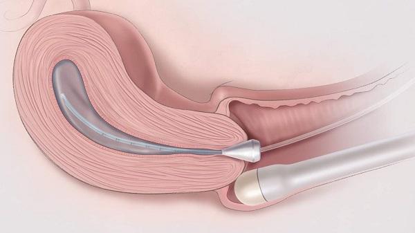 chuyên gia tư vấn điều trị viêm nấm âm đạo