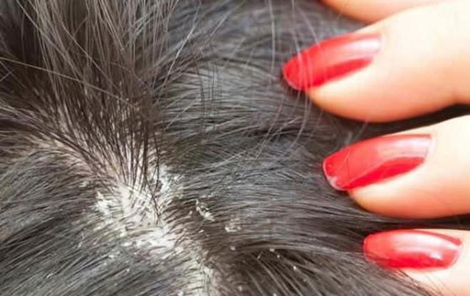 Chữa nấm da đầu tại Đỗ Minh Đường
