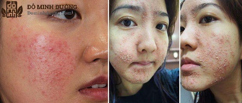 Da nổi mẩn đỏ sưng và các nốt mẩn tụ thành từng đám là dấu hiệu thường gặp của dị ứng da
