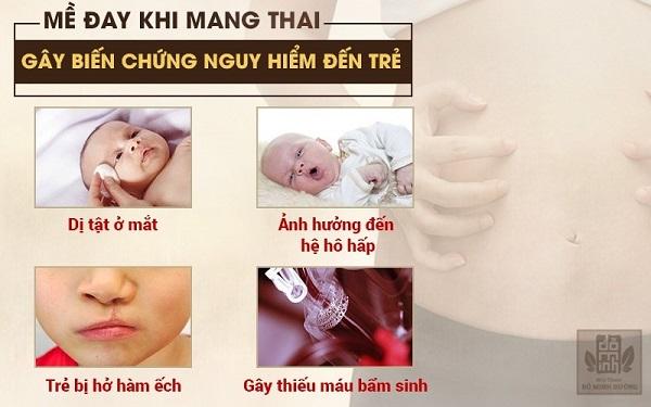 Chủ quan với nổi mề đay, mẩn ngứa khi mang thai có thể ảnh hưởng tới sự phát triển của trẻ