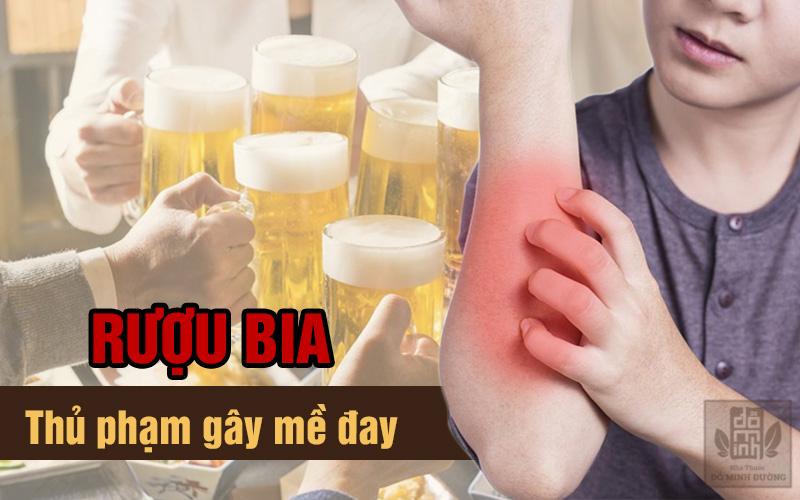 Không dùng rượu bia khi bị nổi mề đay dị ứng